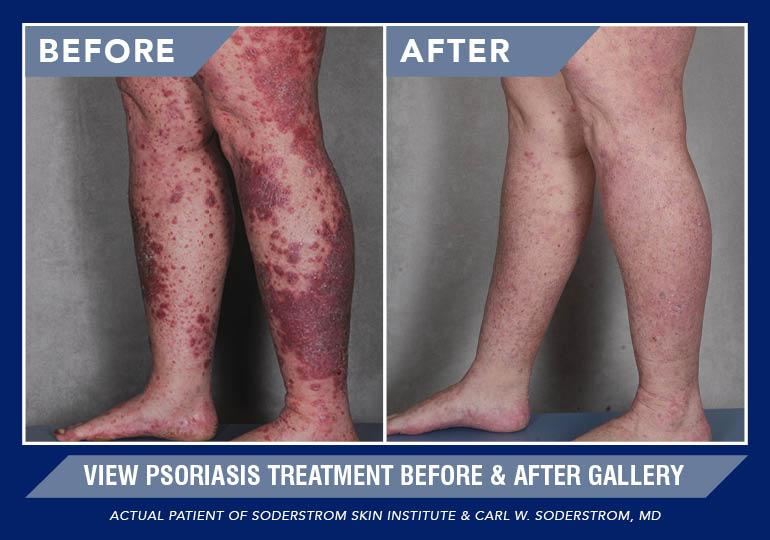 creme arthritis von psoriasis blutwerte