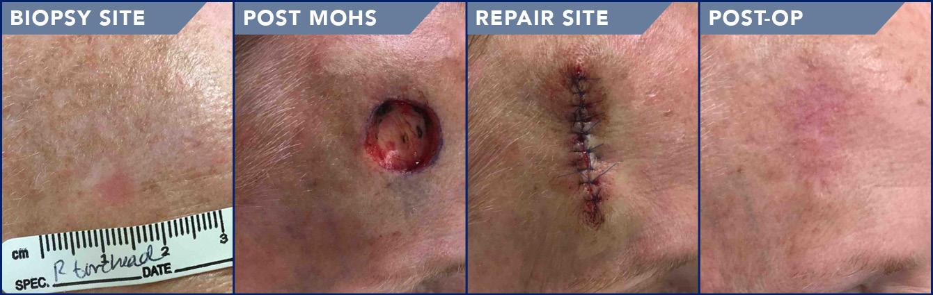 Actual Patient of Joshua B. Kentosh, DO, FAAD and Soderstrom Skin Institute