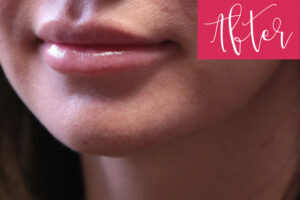 web.JuvedermAfterZoom